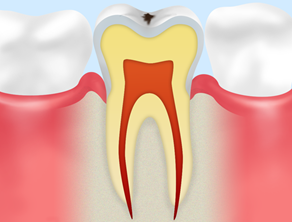 C0(ごく初期の虫歯)