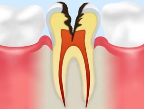 C3(神経まで達した虫歯)