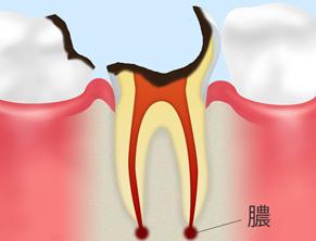 C4(歯根まで達した虫歯)