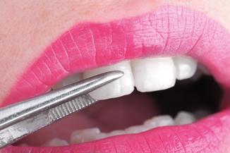 歯の揺度検査