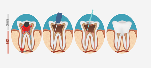 自分の歯を守るための大切な治療です